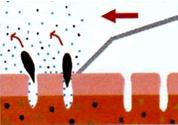 超音波 水溶性クレンジング