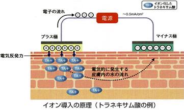トラネキサム酸イオン導入